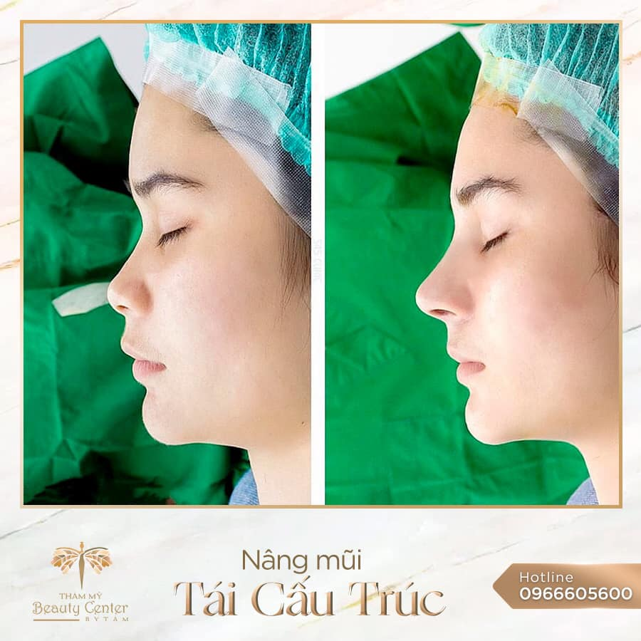 Thẩm mỹ Beauty Center by Tấm - Địa chỉ nâng mũi uy tín tại tphcm